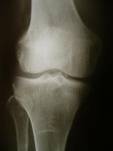 bone_spurs_in_knee